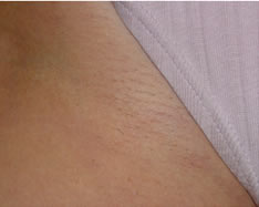 laser-hair-removal-after-1
