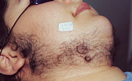 laser-hair-removal-before-1